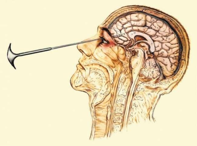 8пугающих примеров того, как наши предки лечили психические расстройства