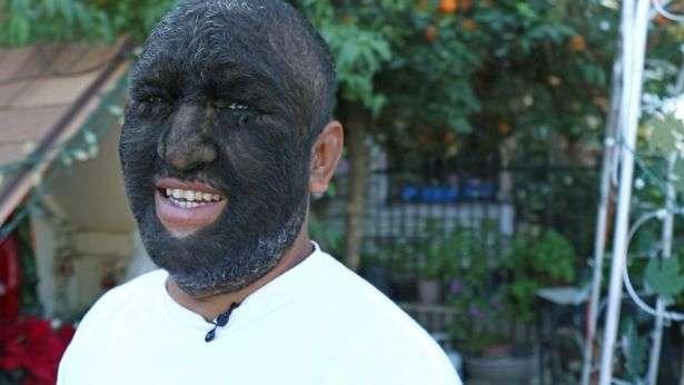 """""""Человек-волк"""". Из-за редкого генетического заболевания тело мужчины на 98% покрыто волосами"""