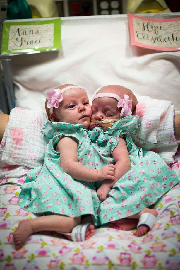 Годовалые сиамские близнецы-девочки удачно разделены в ходе 7-часовой операции