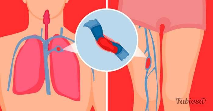9 опасных симптомов тромбоза, которые ни в коем случае нельзя игнорировать