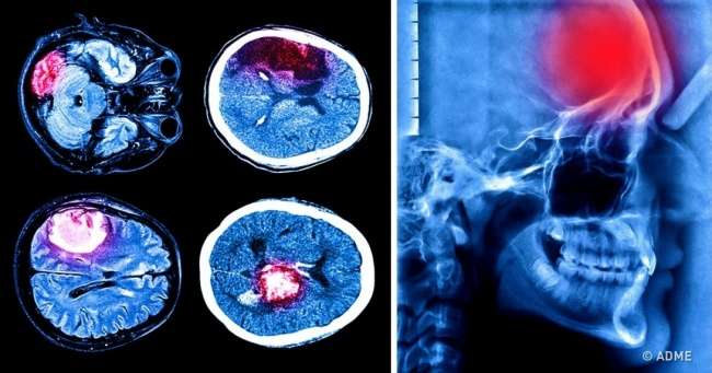 Что нужно знать о-тихом инсульте-— третьей вмире причине внезапной смерти