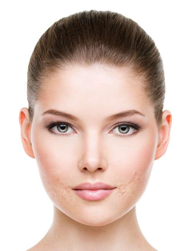 9продуктов, которые нельзя наносить накожу лица, помнению дерматологов