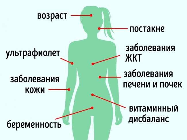 10средств для кожи, которые стирают пигментные пятна как ластик