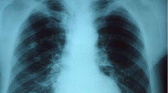 Почему от гриппа до сих пор умирают