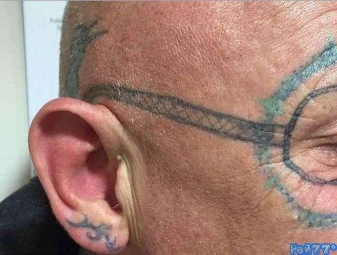 Мужчина решил избавиться от татуировки в виде очков на своём лице-4 фото-