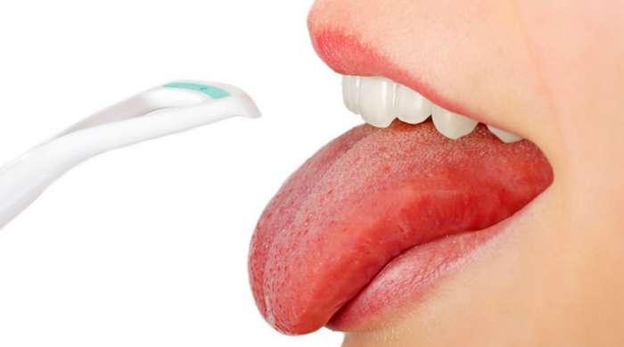 Проблемы со здоровьем, о которых просигнализирует язык