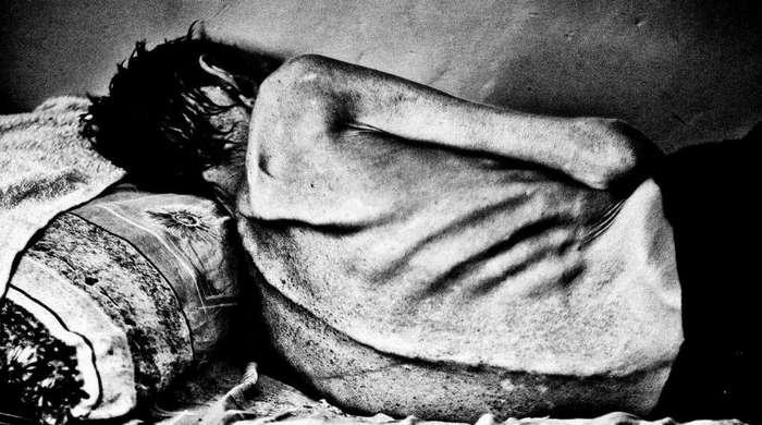 Туберкулез в СССР