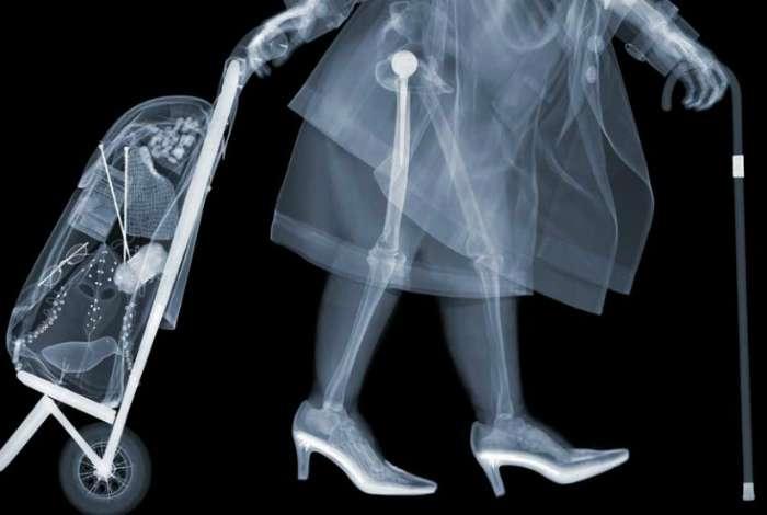17 обалденных рентгеновских фотографий, на которых -внутренний мир- - не просто слова