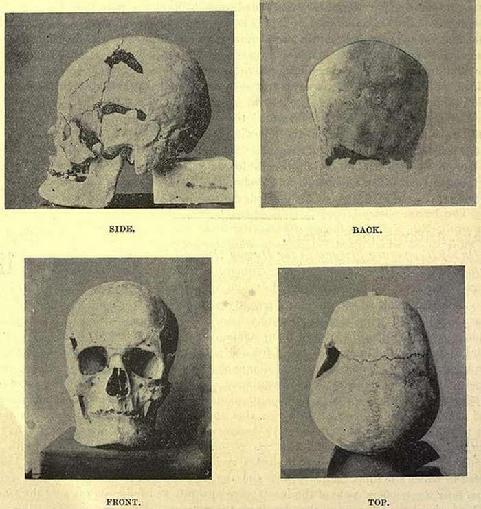 Мумии и скелеты: 4700 лет назад жил первый гигант в истории человечества