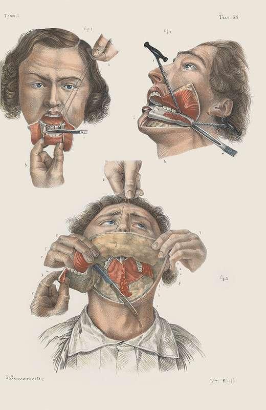 Шокирующие иллюстрации из руководства по хирургии XIX века
