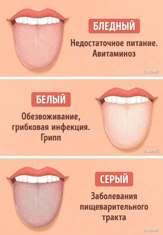 12 проблем, о которых может рассказать цвет языка.