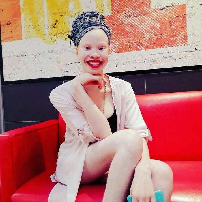 Африканка-альбинос строит карьеру модели