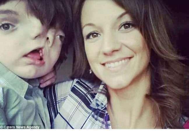 Мальчик с двойным лицом отметил 13-летие вопреки прогнозам врачей