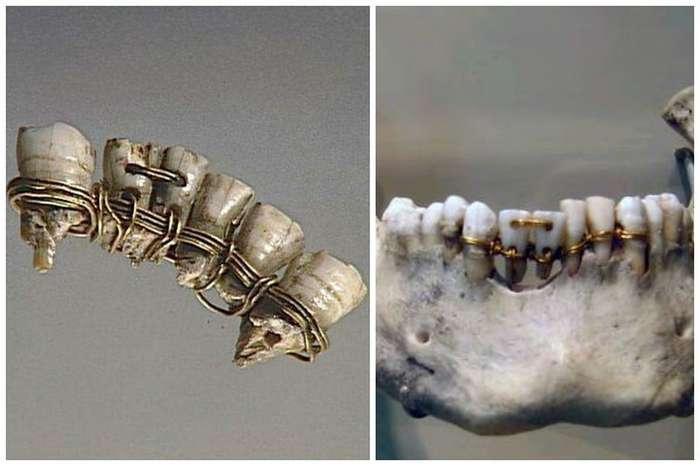 Вы все еще боитесь современных стоматологов? Тогда мы идем к вам!