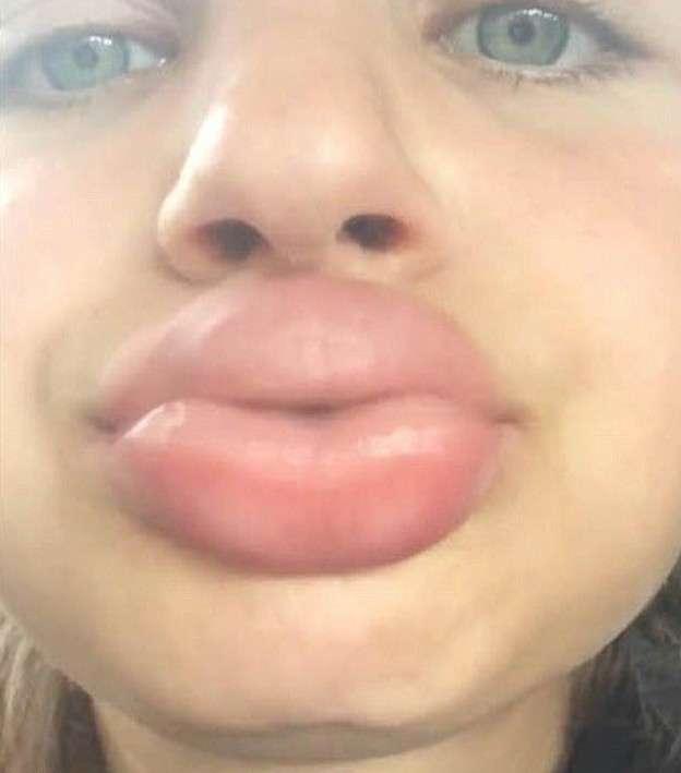 Правда о том, зачем увеличивают губы
