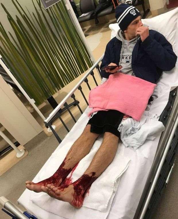 В Австралии странные крошечные морские вампиры атаковали ноги подростка