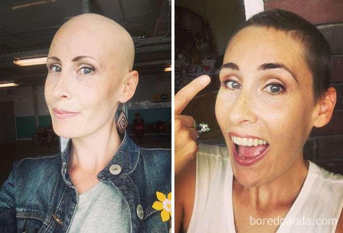 Люди, победившие рак: поразительные фото до и после