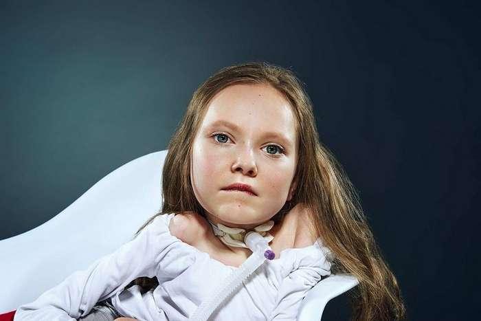 -Мы есть-: проект о детях, которым врачи не давали шансов дожить до школы