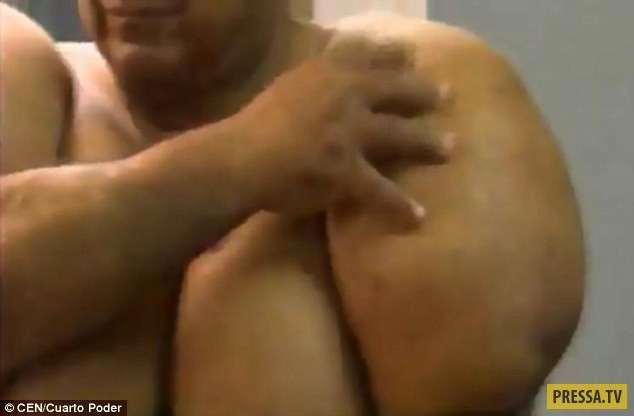 Перуанец раздулся до невероятных размеров после резкого подъема с глубины