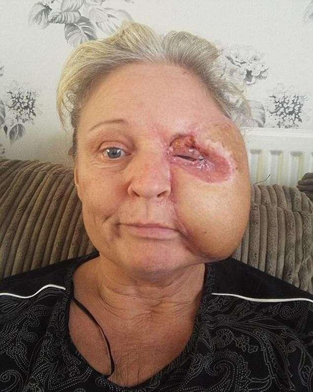 Женщина потеряла половину лица после удара о духовку