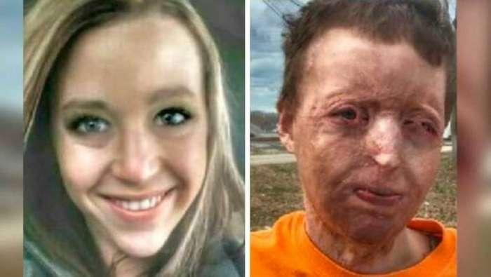 Муж случайно поджег жену, а потом боросил ее с детьми