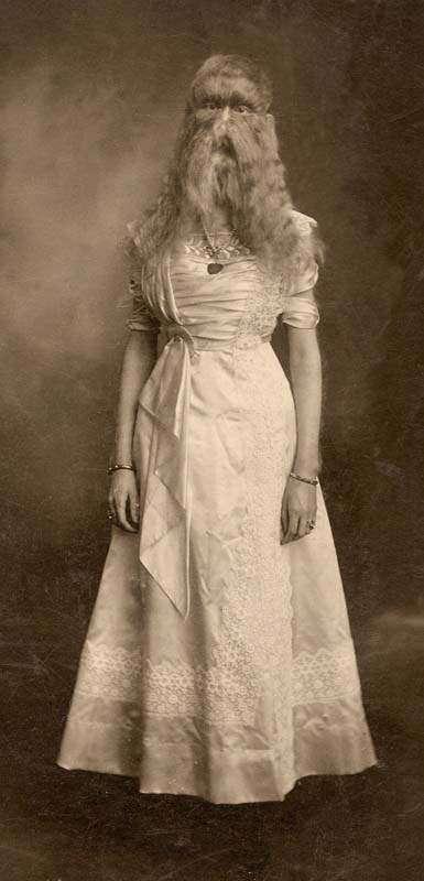 Фрики начала XX века: уродливые и удивительные