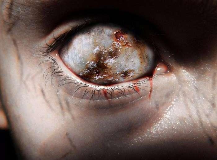 От убийств до дьявола: что слышат медработники от умирающих пациентов