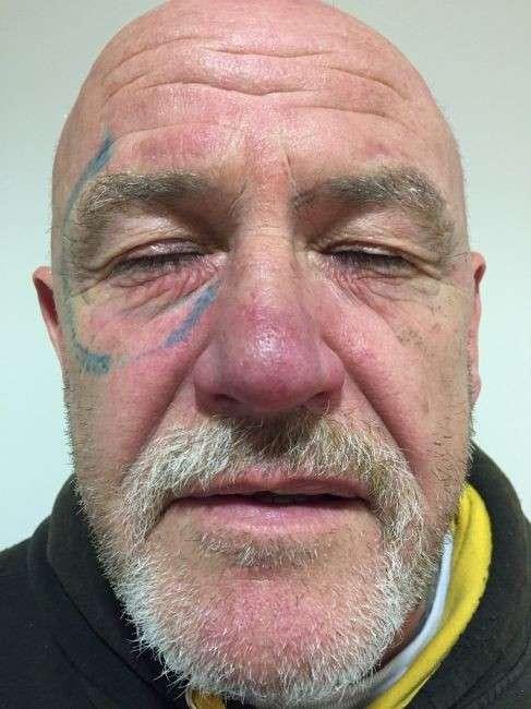 Мальчишник удался. Валлиец два года сводил татуировку солнечных очков, сделанную по пьяни.
