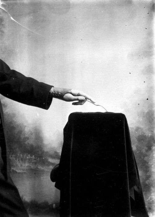 Протезы Джеймса Гиллингхэма, опередившие свое время