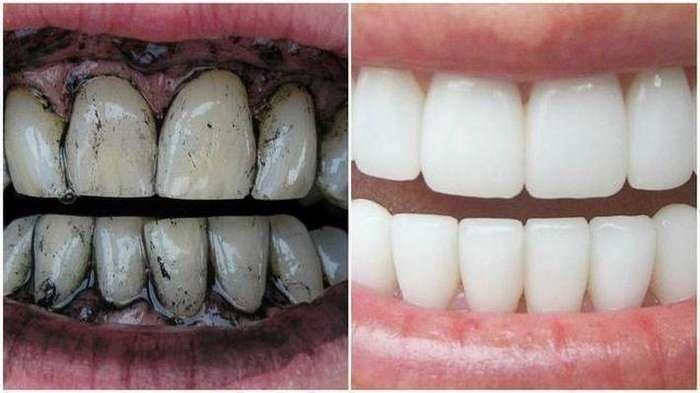 Как отбелить зубы активированным углём в домашних условиях