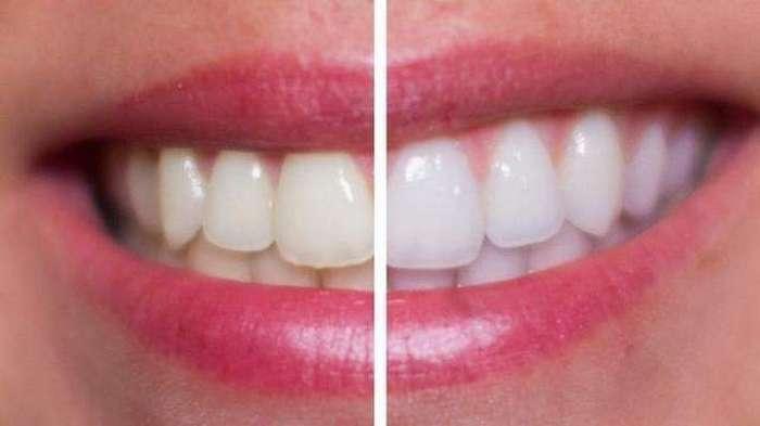 11 простых способов отбеливания зубов в домашних условиях