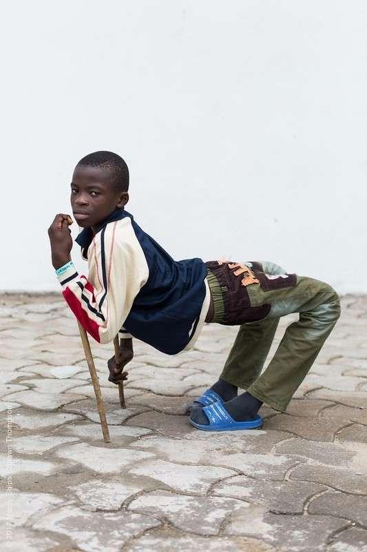 12-летнему мальчику с вывернутыми коленями подарили возможность ходить