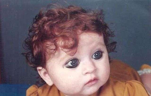 Пуджа Ганатра - индианка с белой кожей и рыжими волосами