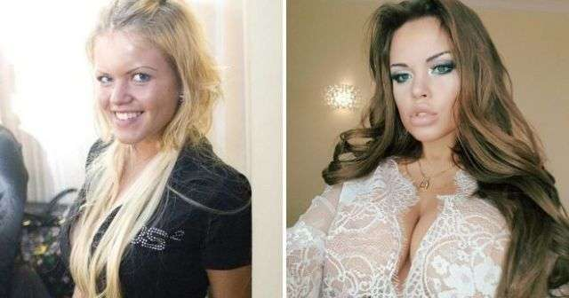Российские звезды Instagram до и после пластических операций