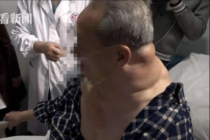 30 лет пьянства превратили мужчину в -Халка-