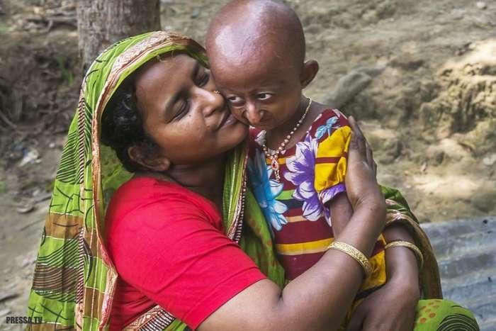 Девочке, страдающей прогерией, осталось жить не более трех лет