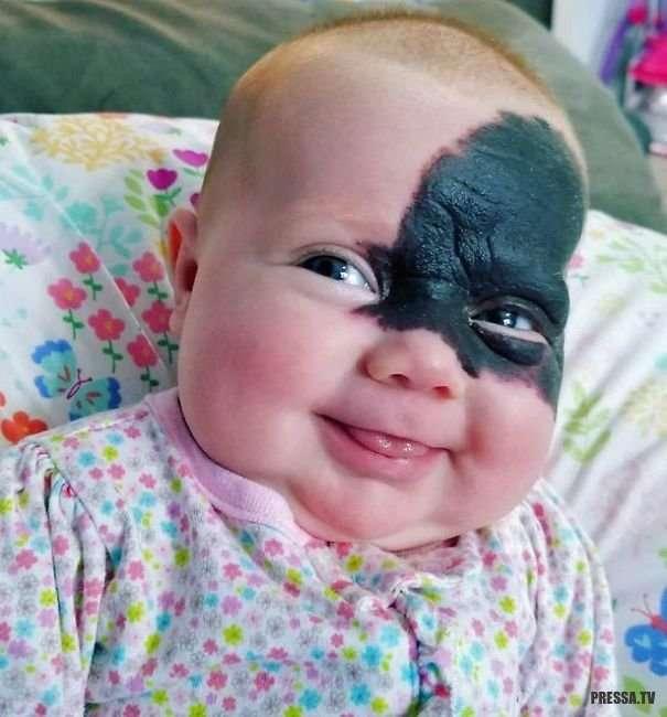 Девочка с родимым пятном на треть лица