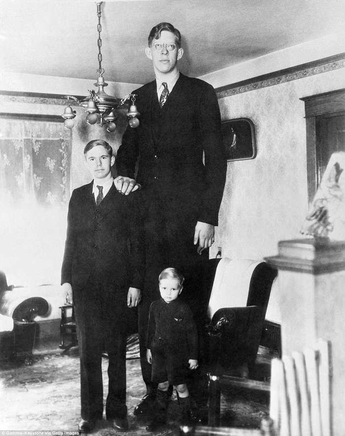 Добрый великан: самый высокий человек в мире Роберт Уодлоу-22 фото + 1 видео-