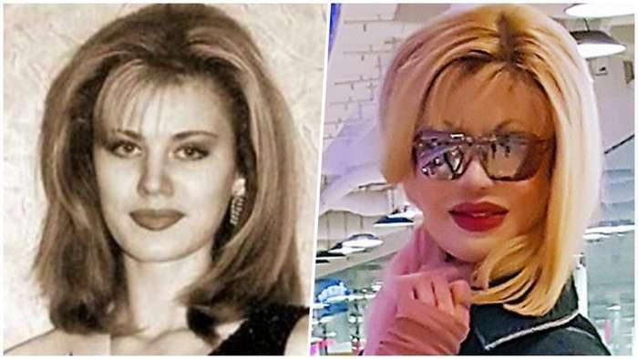Как сложилась судьба королевы красоты, которую облили кислотой 20 лет назад-10 фото-