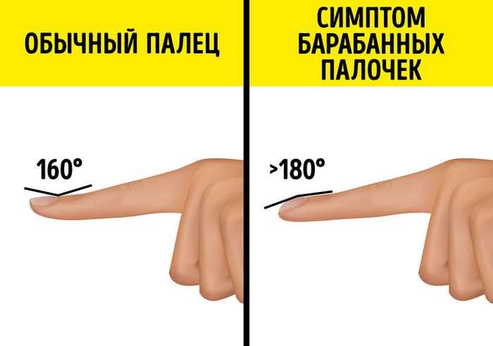 Если ваши ногти выглядят также, как уэтой женщины, товам стоит срочно проверить свое здоровье