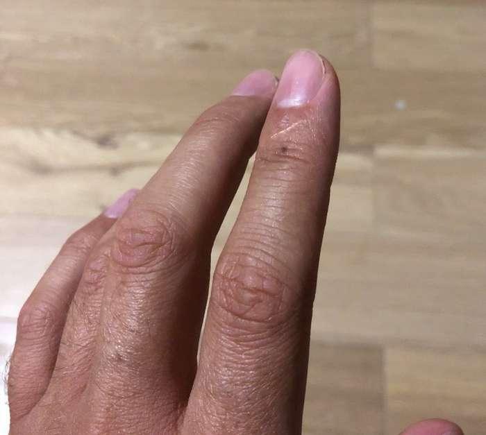 Люди всети вдруг осознали, что укаждого есть шрам науказательном пальце иеще пара странностей нателе