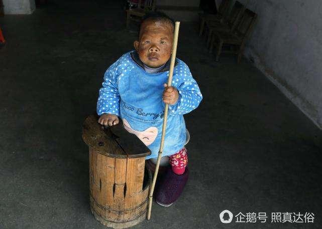 31-летний китаец -заперт- в теле 4-летнего ребенка и имеет умственное развитие как у 2-летнего -6 фото-