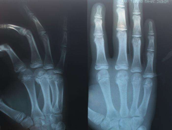 Становятся ли кости после перелома крепче или хрупче
