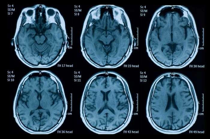Галлюциногенные грибы признали эффективнейшим лекарством от депрессии