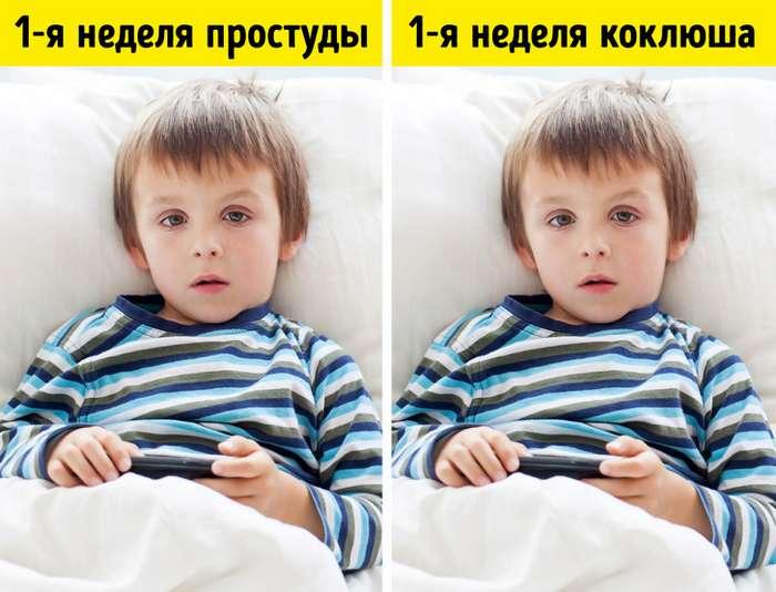 6похожих напростуду детских болезней, которые опасно пускать насамотек