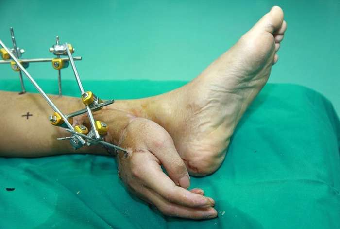 В Китае оторванную руку пациента спасли неожиданным способом-4 фото-