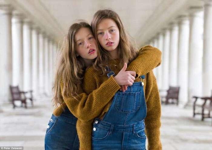 Необычный фотопроект о близнецах