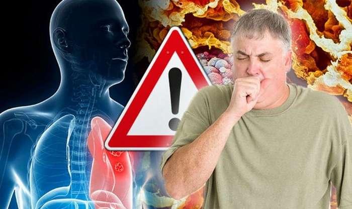 Самые смертоносные болезни