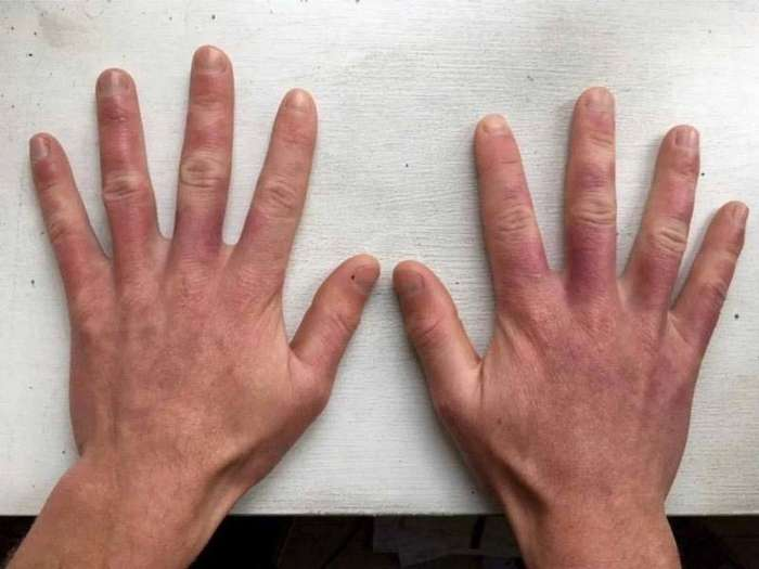История о том, как полуночное солнце наделило мужчину -гнилой кожей зомби--4 фото-