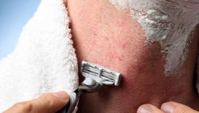 7 верных и простых способов избавиться от раздражения после бритья